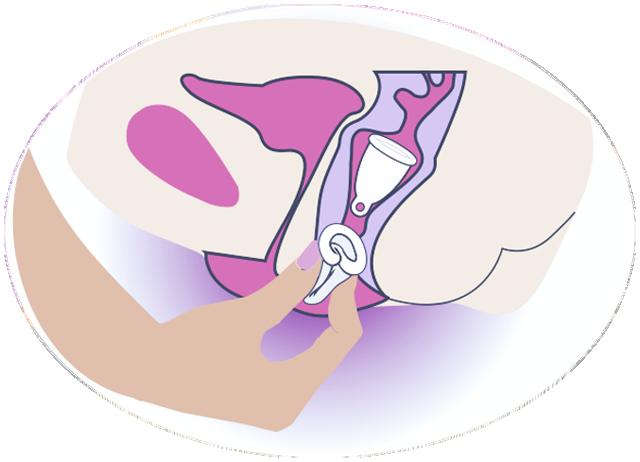 Menstruationstasse-einfuehren